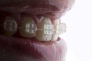Título Profesional de Especialista en Ortodoncia y Ortopedia Dento Maxilofacial
