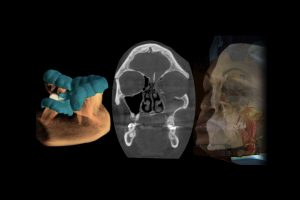 Título Profesional de Especialista en Imagenología Oral y Maxilofacial